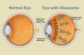 Glaucoma-Schemtic1sm